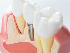 総入れ歯の方、多くの歯をなくした方に最適な理由