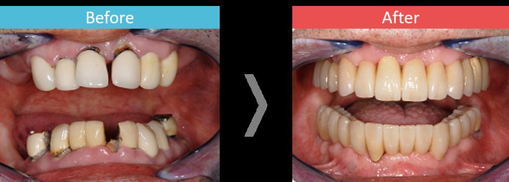 上下顎のオールオン4の症例写真