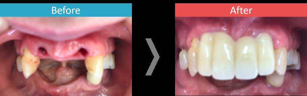上顎のALL-on-4の症例写真