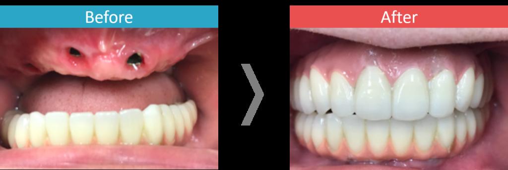 上顎のオールオン4治療による症例写真
