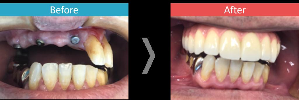 上顎のオールオン4の症例写真